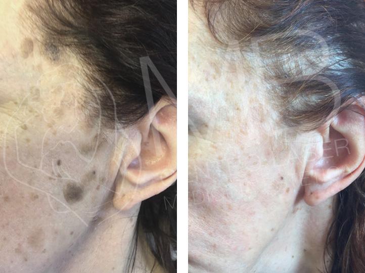 Dermolaserchirurgia Cheratosi seborroiche Thiene