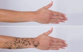 Rimozione tatuaggi Thiene- Medicina estetica Buratto