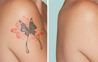 Rimuovere tatuaggio - Medicin Estetica Buratto