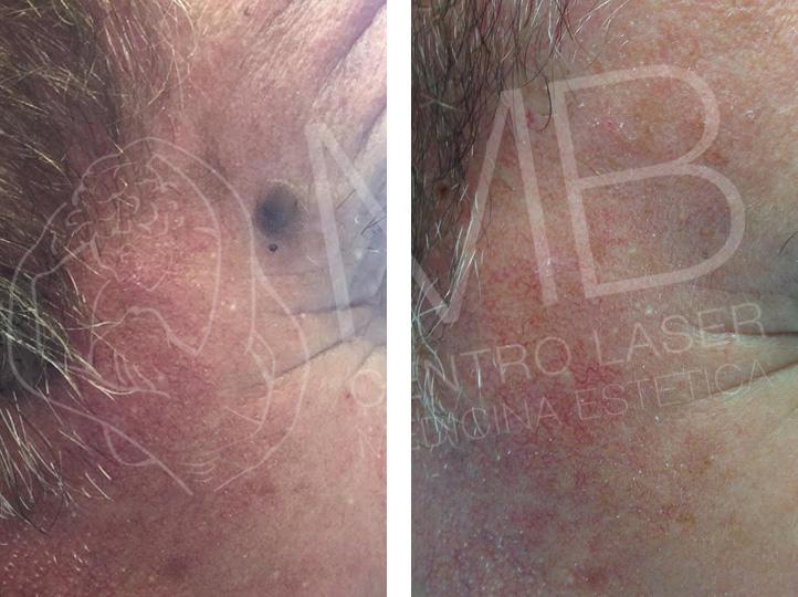 Trattamenti laser Cheratosi seborroiche Thiene