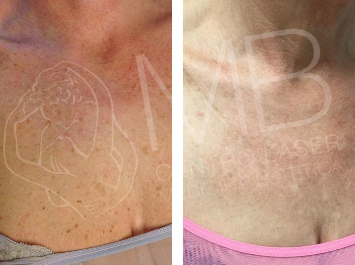 discromie Macchie della pelle