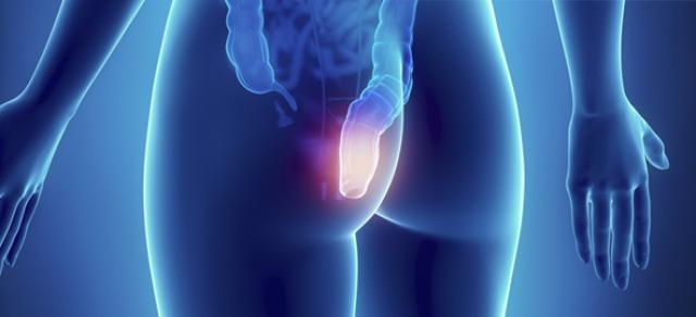 emorroidi sintomi e rimedi