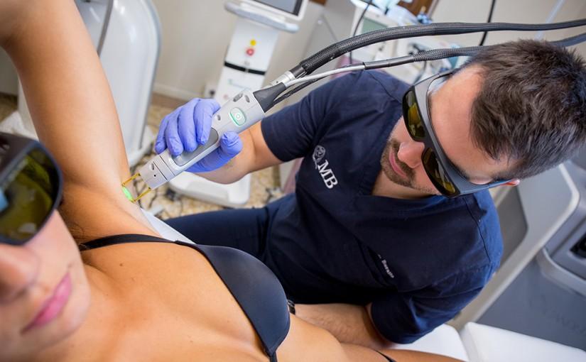 Epilazione laser sul collo
