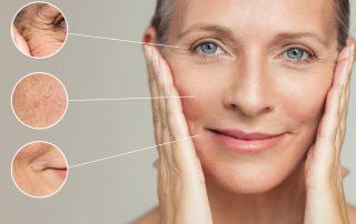 laser Co2 frazionato come anti aging