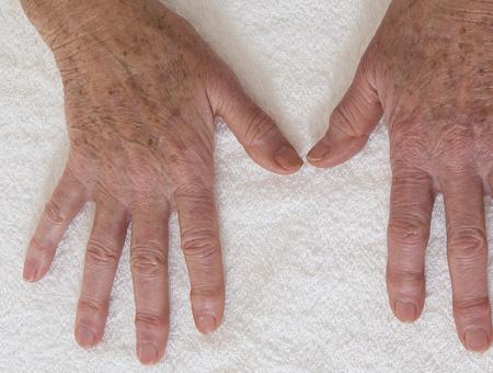 laserterapia Ringiovanimento mani
