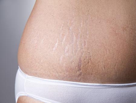 laserterapia Smagliature