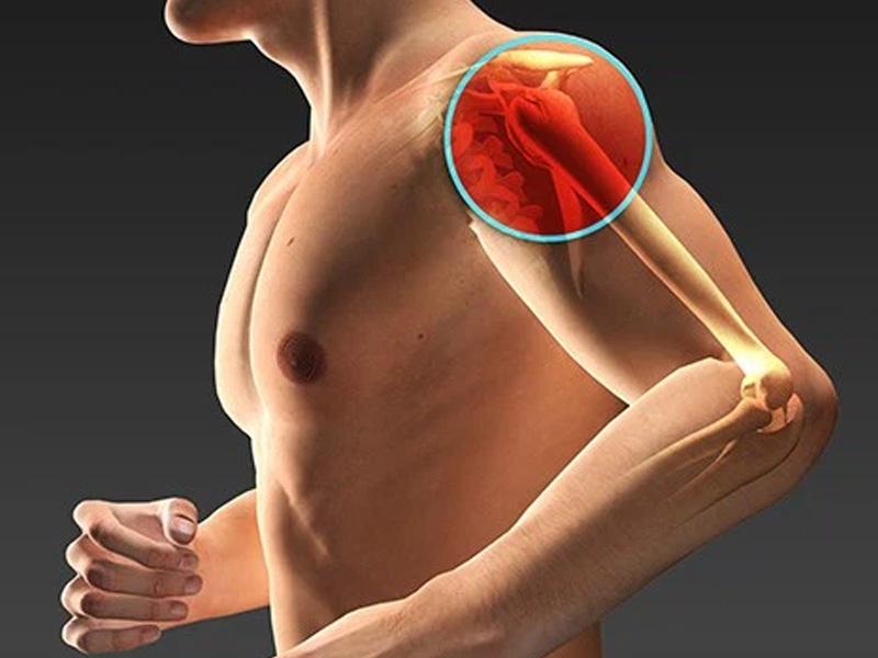 Dolore alla spalla: l'artroscopia per la lesione della cuffia dei rotatori