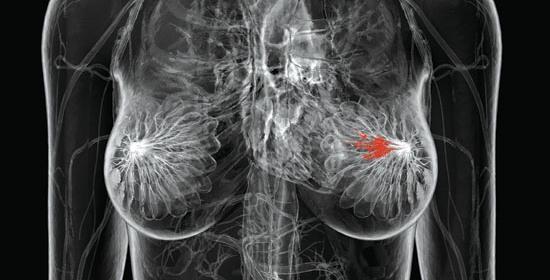 mammografia - thiene vicenza