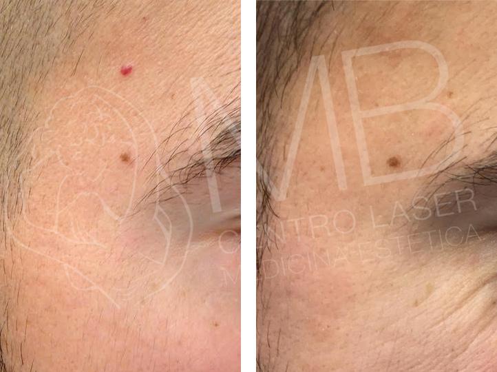 trattamenti laser angioma