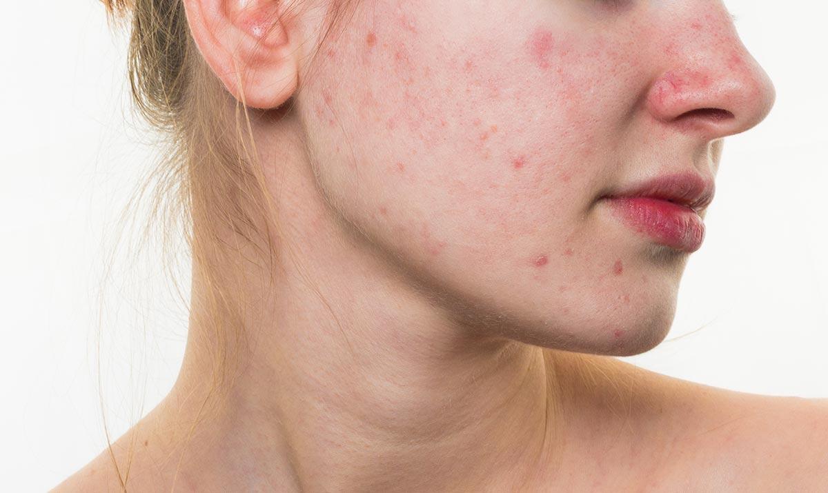 Acne: rivolgersi al dermatologo per individuare la giusta terapia a tutte le età