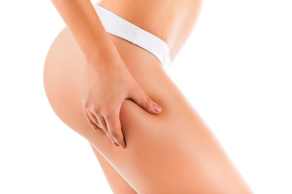 trattamento corpo Carbossiterapia Vicenza