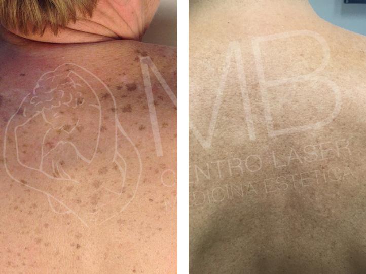 trattamento laser Macchie della pelle vicenza