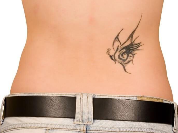 trattamento laser Rimozione tatuaggi vicenza