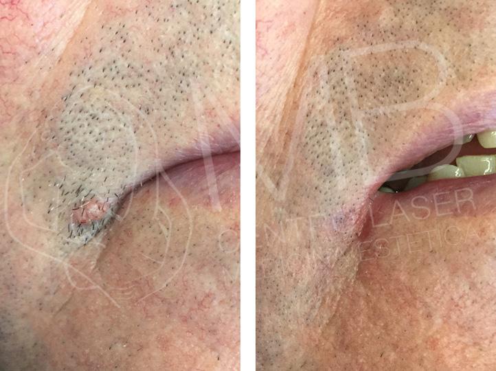 trattamento laser Verruche vicenza
