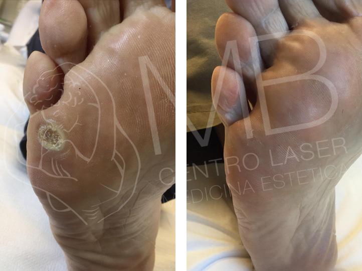 trattamento laser Verruche
