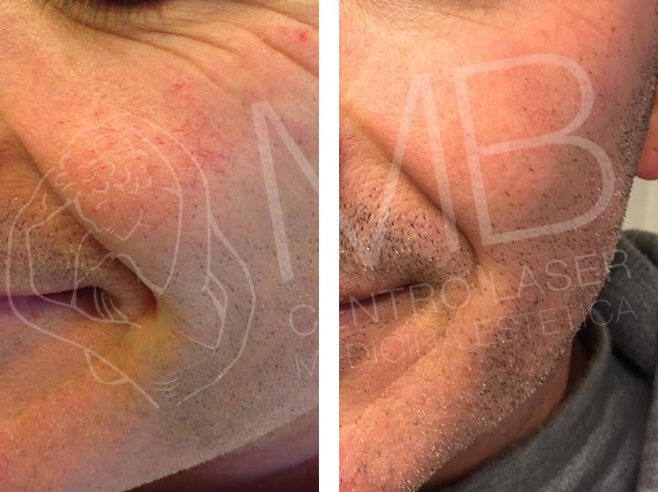 trattamento laser couperose thiene